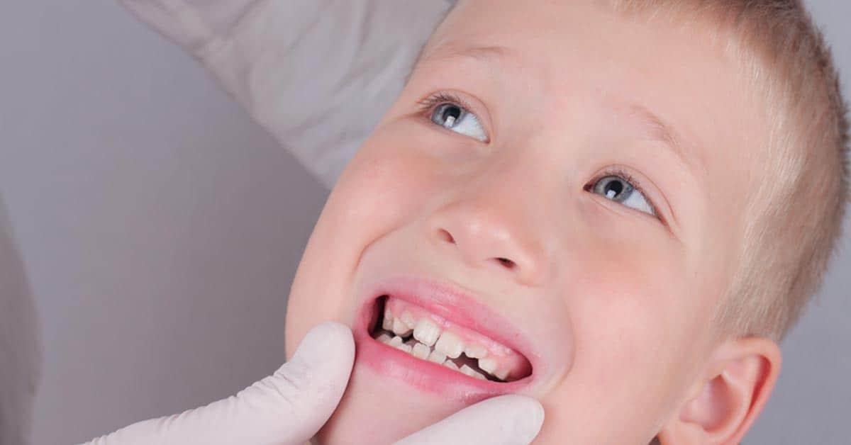 Photo of Çocuklarda diş çürümesi nasıl engellenilir?