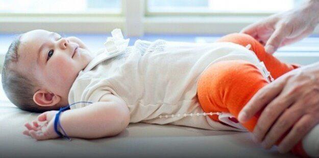 Photo of Doğuştan Kalça Çıkığı Erken Tanı ile Kolayca Tedavi Ediliyor