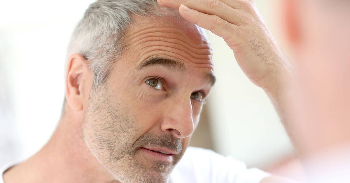 Photo of Saç ekimi nasıl yapılır?