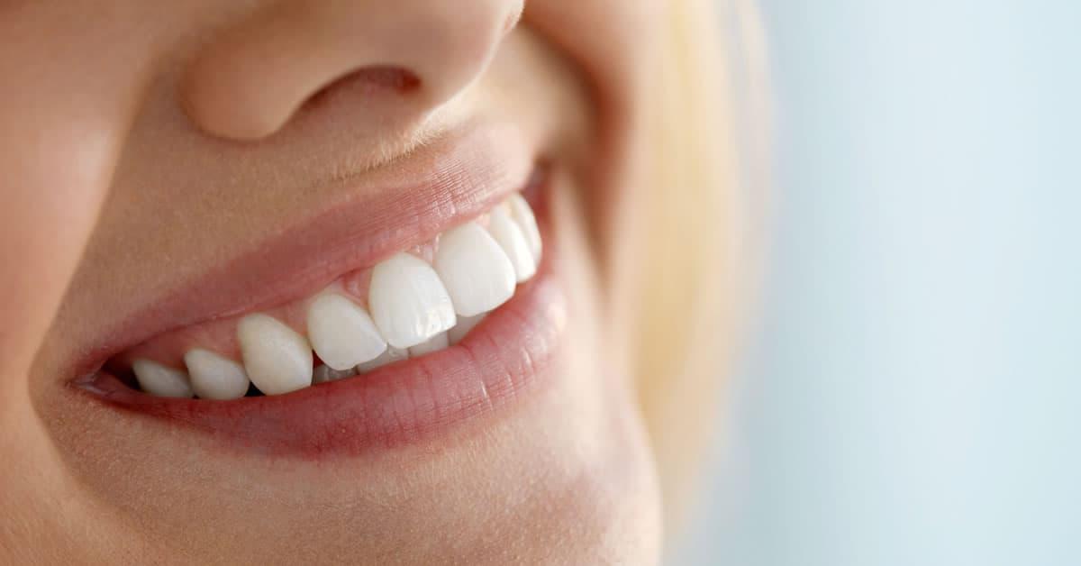Photo of Sağlıklı dişler için beslenme çantasına özen göstermelisiniz