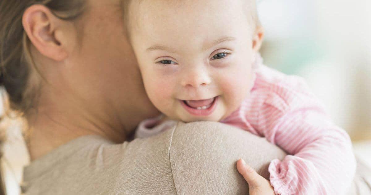 Photo of Down Sendromlu Çocukların Gelişim Özellikleri
