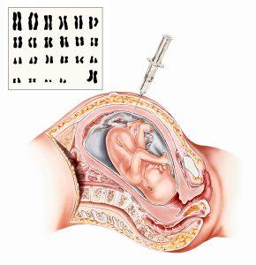 nöral tüp defekti ve amniyosentez