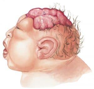 nöral tüp defekti ve tedavisi