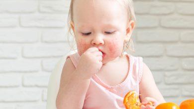 Photo of Bebeklerde Görülen Besin Alerjisi Hakkında Tüm Detaylar