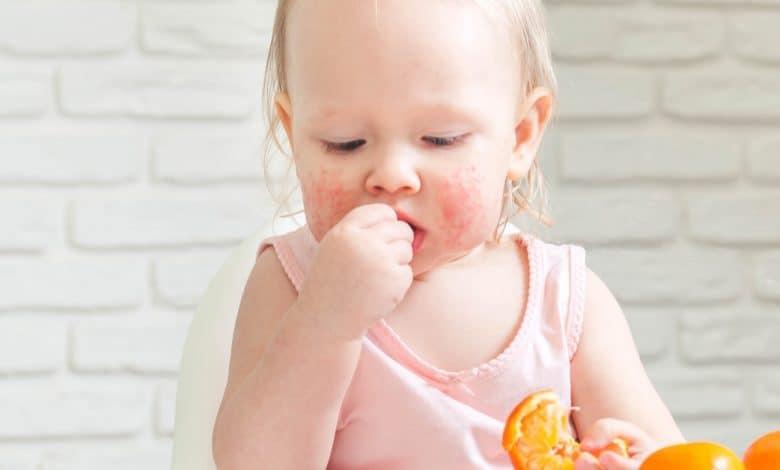Bebeklerde Görülen Besin Alerjisi Hakkında Tüm Detaylar