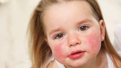Photo of Çocuklarda Beşinci Hastalık Belirtileri ve Tedavisi