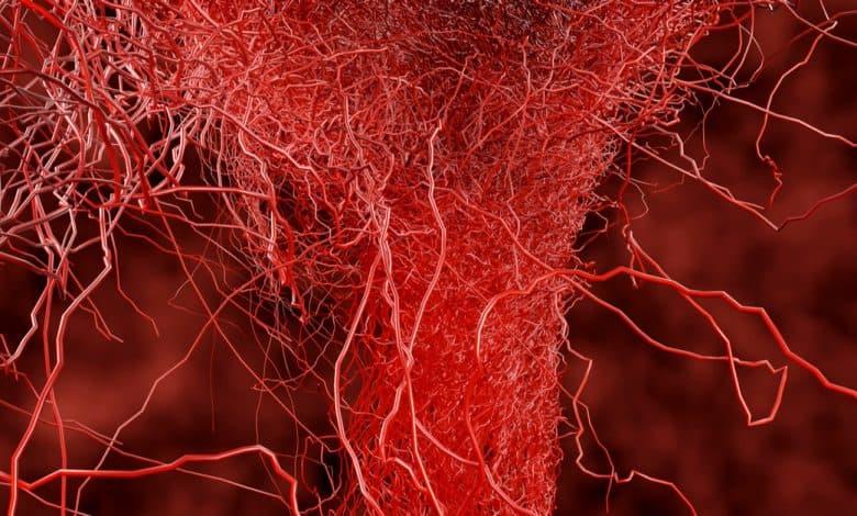 hamilelikte-kilcal-damar-catlamasi