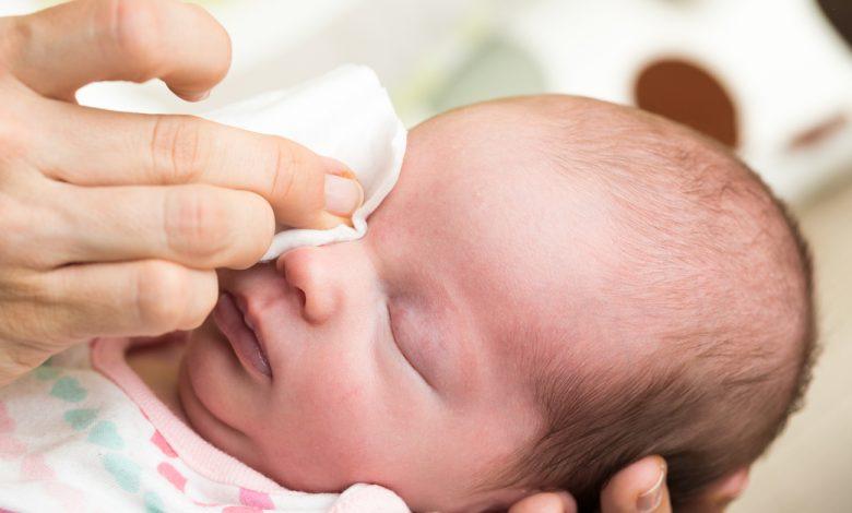 Bebeklerde Göz Hastalıkları Belirtileri ve Tedavisi