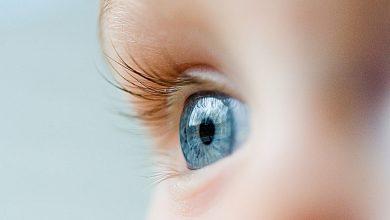 Photo of Bebeklerde Göz Hastalıkları Belirtileri ve Tedavisi
