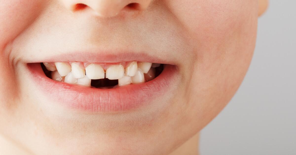 Çocuklarda Oluşan Diş Problemleri